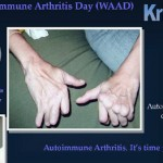 Autoimmune Arthritis Diseases to Have Online Virtual Convention