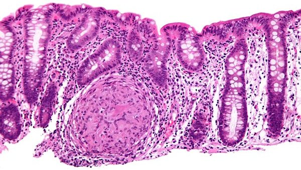 colon inflammation