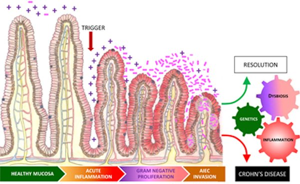crohns diagram crohns the diagram vegan magazine – crohn's disease driven by inflammation ...