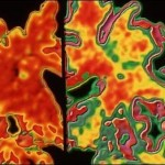 Alzheimer's detected decades before symptoms