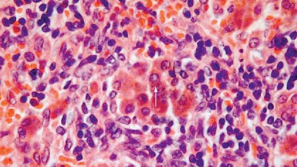 Liver cancer due to chronic inflammation